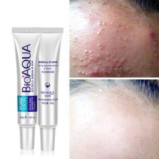 Bioaqua 30g Acne Rosacea Age Spots Freckles removal Night cream Skin whitening Gel anti bacterial reduce pigmentation