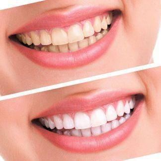 Hot Teeth Whitening 44% Peroxide Dental Bleaching System Oral Gel Kit Tooth Whitener Dental Equipment