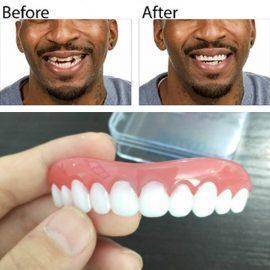 Professional Perfect Instant Smile Comfort Fit Flex False Dentures Teeth Top Cosmetic Dental Dental Silica Gel Upper Row